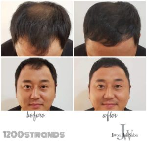 Nano Hair Extension